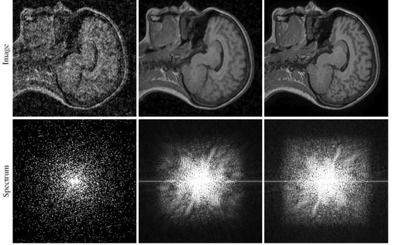 Удаление шума со снимка МРТ